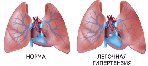 hipertenzija 3 laipsniai pagal mcb