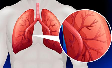 antrinė hipertenzija pagal mcb)