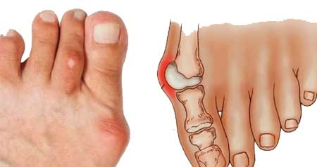Išmokti daugiau apie dantu skausmas kaip numalsinti